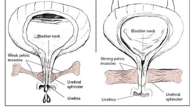 weak-and-strong-pelvic-floor-muscles